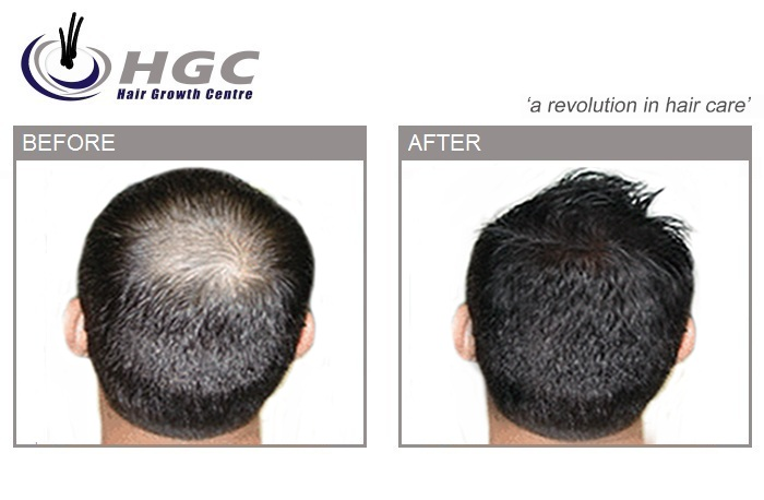 Logo of Hair Growth Centre Hair Consultants In London, Chippenham